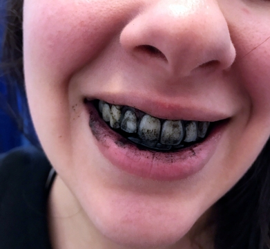 story image charcoal on teeth.JPG