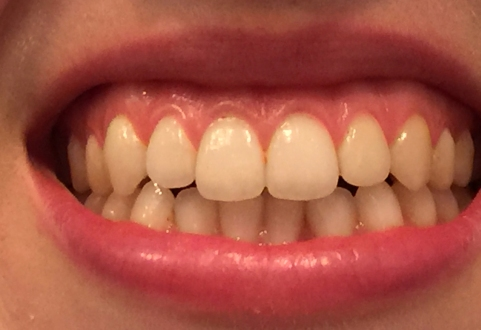 Kanelstrand: Can Turmeric Really Whiten Teeth? |Turmeric Teeth Before And After